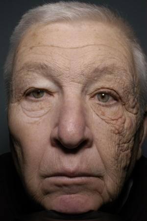 光老化の例