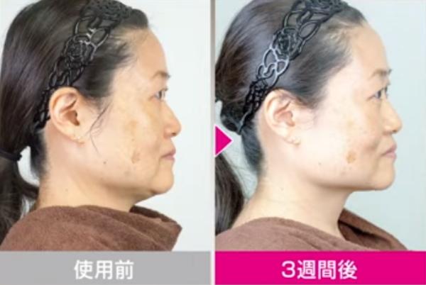 EMS美顔器の効果2